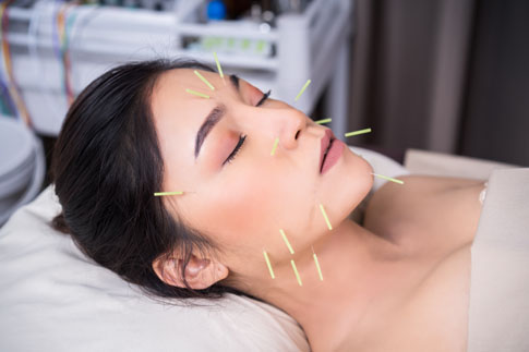 Women with acupuncture needles on face